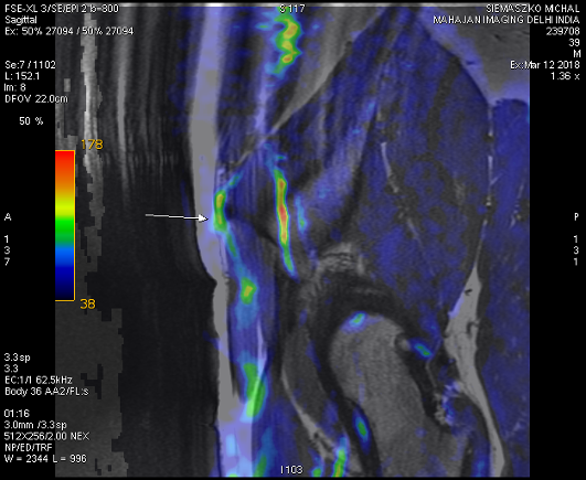 MRI of nervous system - selected frames from DICOM data